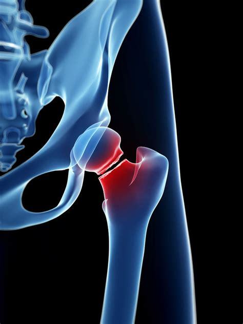 Subclinical Hyperthyroidism Increases Risk of Hip and