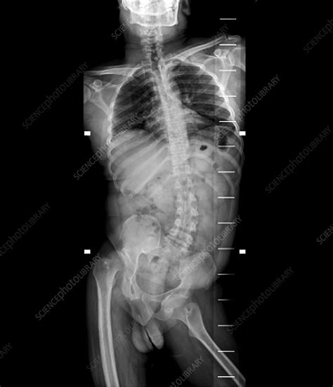 Spinal deviation in polio, X-ray - Stock Image C029/9833